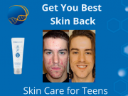 Skin Care for Teens